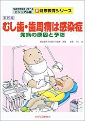 むし歯、歯周病は感染症